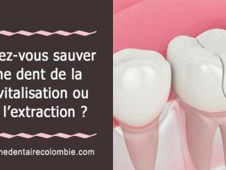 Sauver une dent