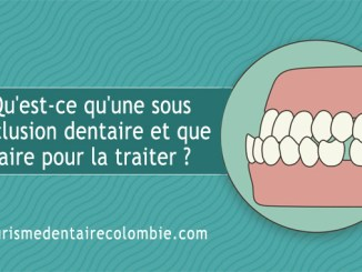 sous occlusion dentaire