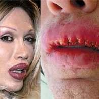 'Dead or Alive' singer Pete Burns Sues After Disfiguring Lip Job