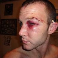 Gay Man Stabbed, Beaten, Burned in Hate Crime in Rural Texas