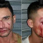 Two Arrested in New Brutal Attack of Two Gay Men in NYC