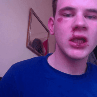 British Man Attacked in Anti-Gay Hate Crime, Posts Story On Facebook