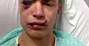 Man hit 6 times with beer bottle