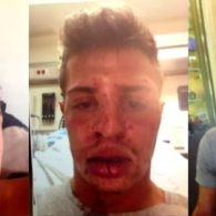 Gay Man Brutally Attacked After Kissing His Boyfriend at Miami Beach Burger King Speaks Out: WATCH