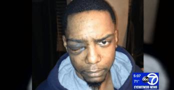 taj patterson assaulted by Mayer Herskovic