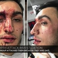 Gay Ohio Couple Allegedly Assaulted By Up To 10 Men In Savage Weekend Attack: VIDEO