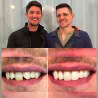 D.C. Dentist Fixes Gay Hate Crime Victim's Teeth for Free