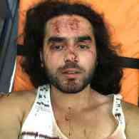 Mob of More Than 30 People Brutally Attacks 9 LGBTQ Activists in Armenia
