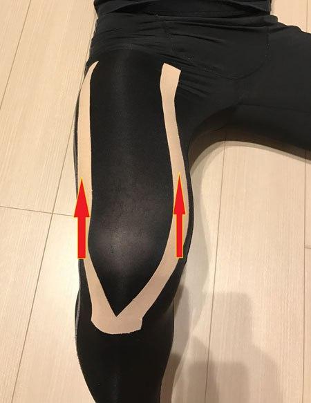 ジャンパー膝のテーピング
