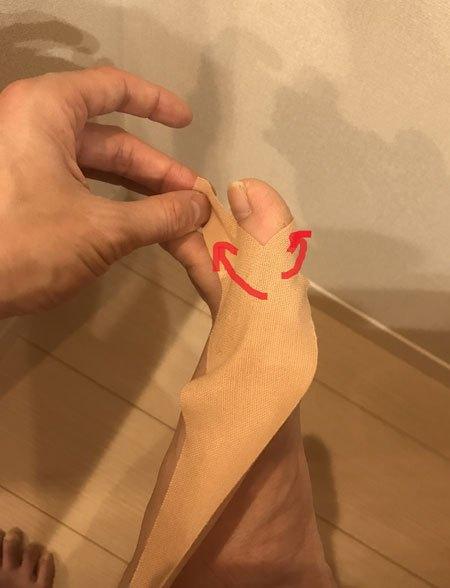 外反母趾のテーピング