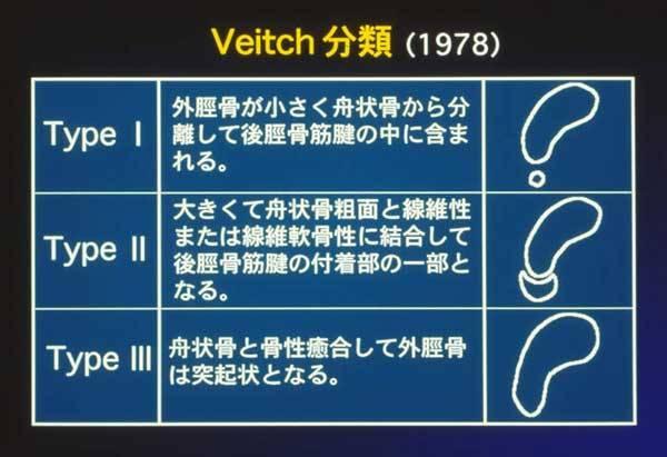 Veitch分類