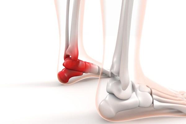 シーバー病(踵骨骨端症)の治療・テーピング・サポーター・ストレッチ全知識