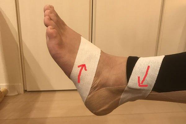 アキレス腱炎のテーピング