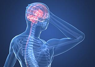 Migraines - Copyright – Stock Photo / Register Mark