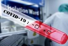 Photo of NAJNOVIJI PODACI: U Srbiji od korona virusa dosad zaražena 1.171 osoba, ukupno 31 preminuli