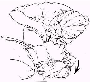 Head tilt or chin lift