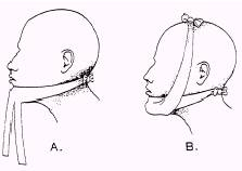 Fracture of the jaw