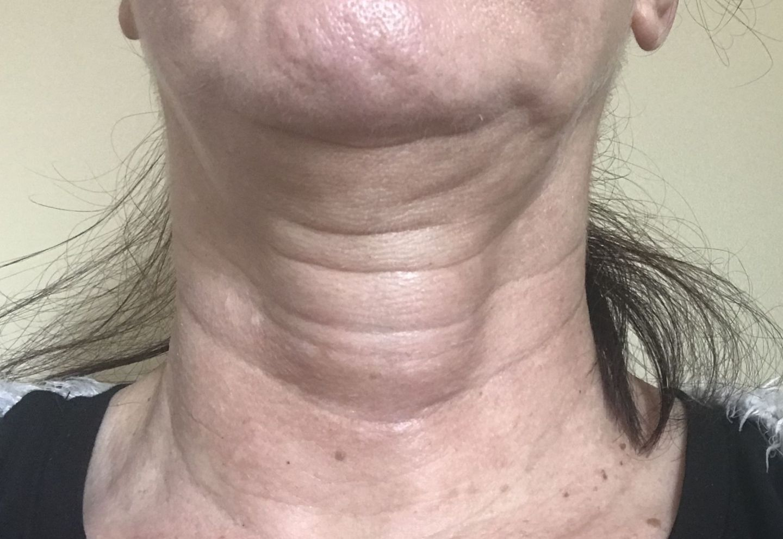 Image of lump on my throat
