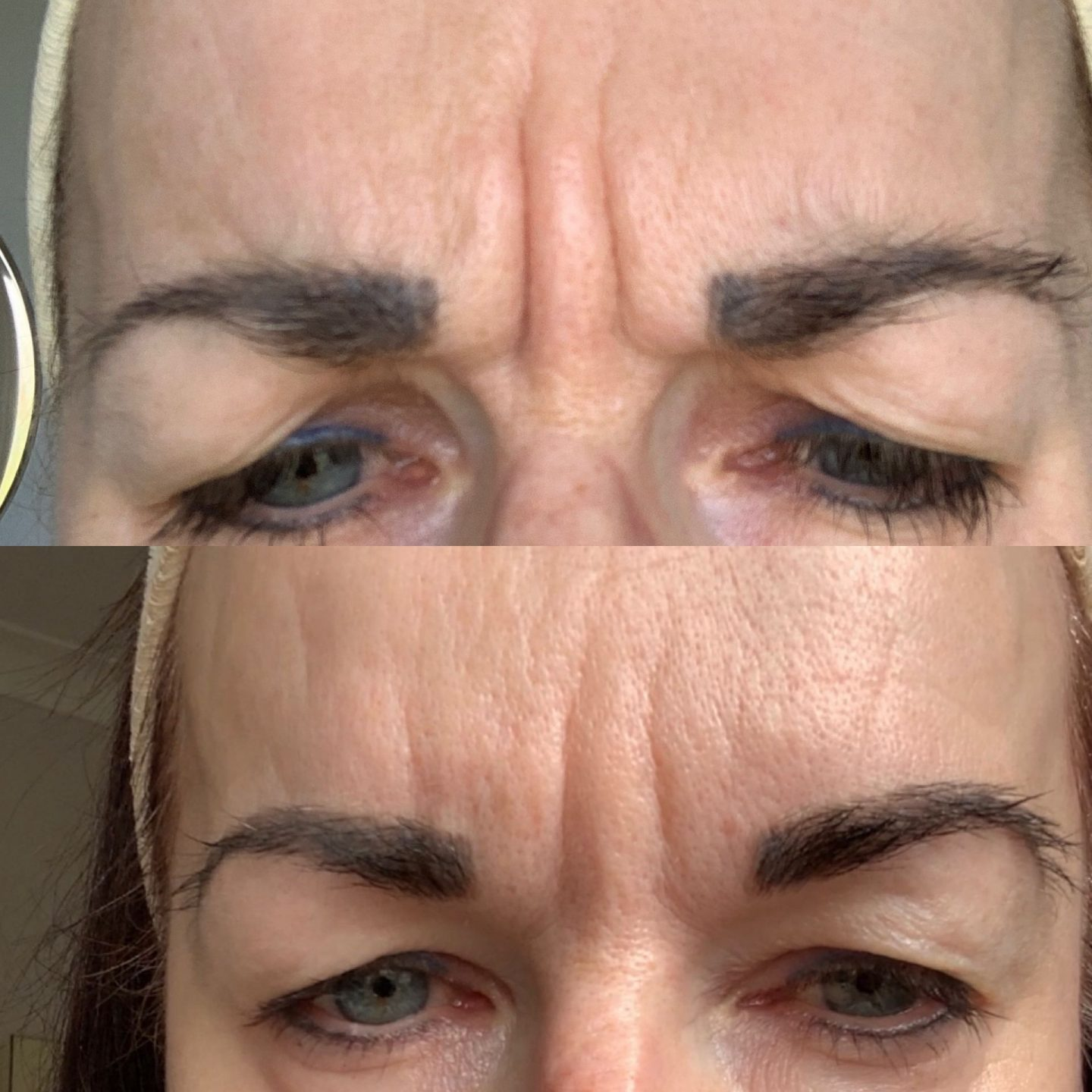 Image of forehead number 11 lines at start of botox journey and image 1 year on