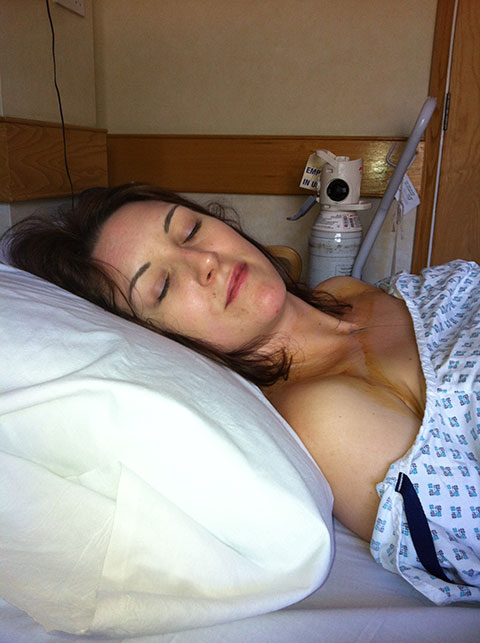 I Had My PIP Implants Removed On 22/04/13