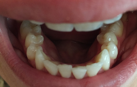 My Teeth Have Moved Out Of Alignment Following My Six Month Smile Treatment