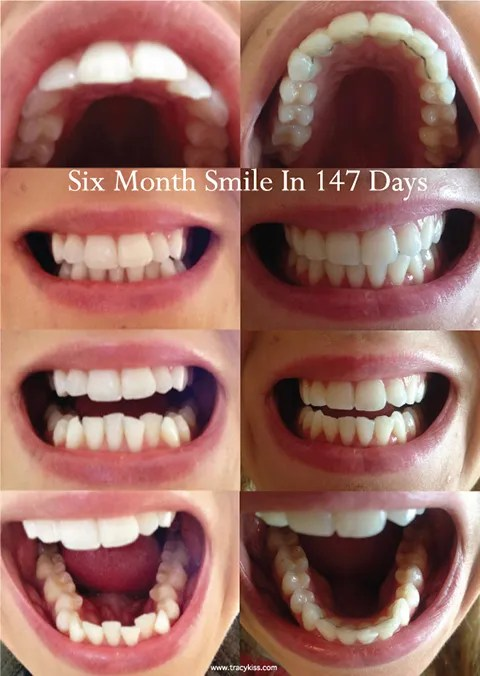 Straightening my teeth with adult braces six month smile cosmetic braces before and after solutioingenieria