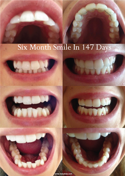 Straightening my teeth with adult braces six month smile cosmetic braces before and after solutioingenieria Choice Image