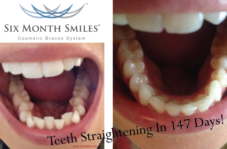 Six Month Smile Cosmetic Braces System