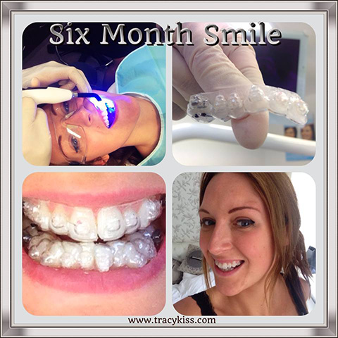 Today My Six Month Smile Braces Were Fitted