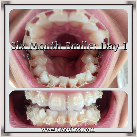 My Teeth At The Start Of My Six Month Smile Treatment
