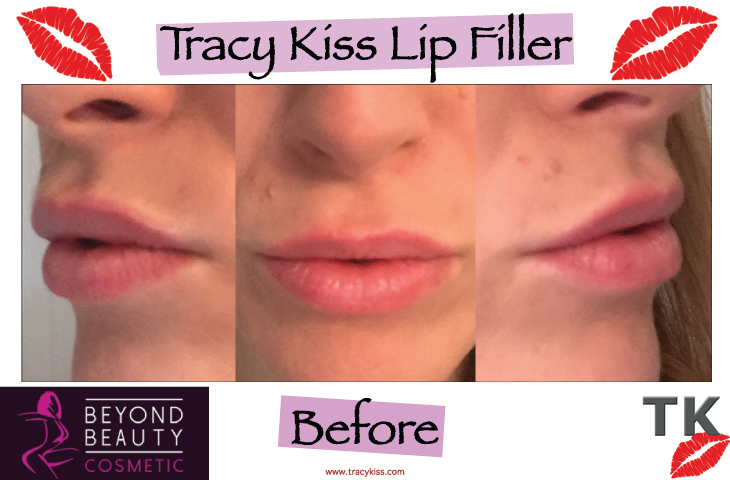 Tracy Kiss Lips Before