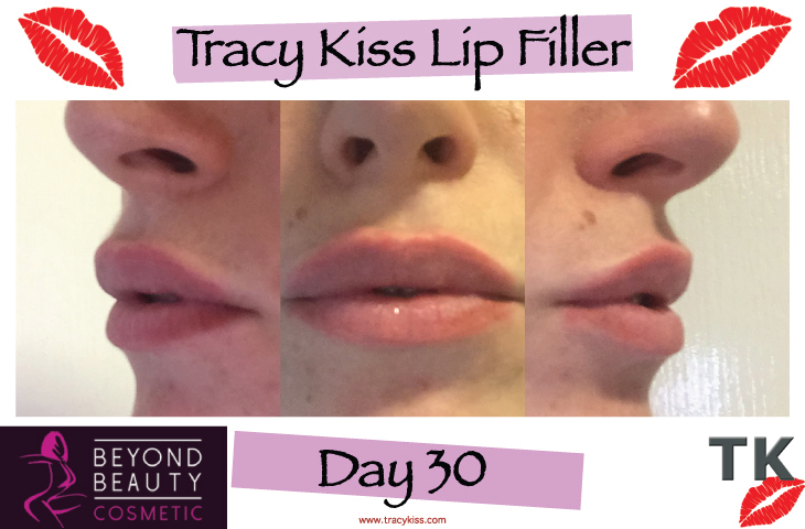 Tracy Kiss Lips Day 30