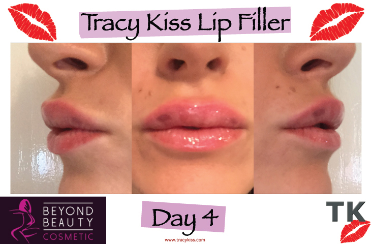 Tracy Kiss Lips Day 4