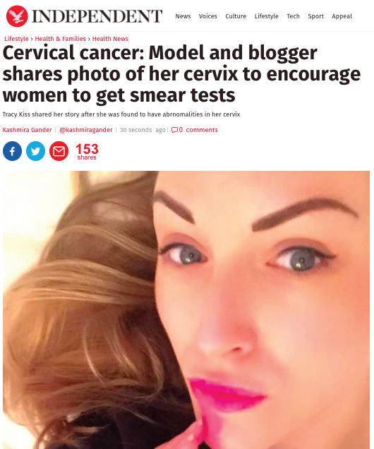Tracy Kiss Speaks About Cervical Screening In The Independent