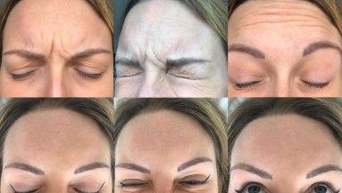 Beyond Beauty Cosmetic Botox
