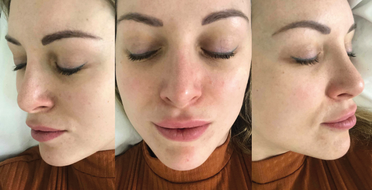 Ipl Rosacea Scar Laser Treatment Tracy Kiss