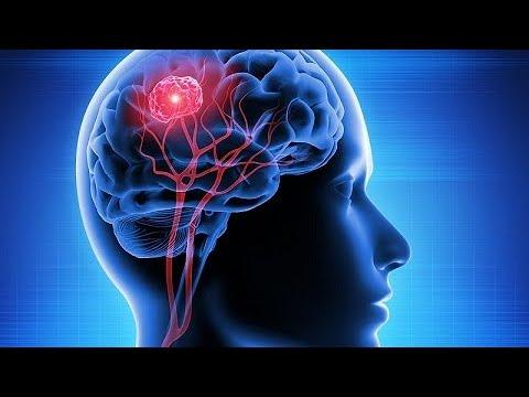 Capacete magnético reduz tumor cerebral em 31%