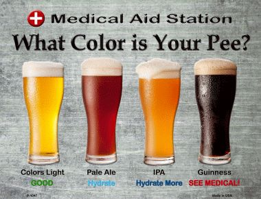 Farbe des Urin Hydration