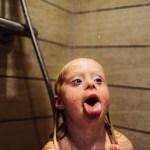 24h qua ảnh của một bé gái mắc hội chứng Down