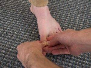 Natural Foot Health Consultation