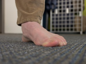 Exercise-2-Pronation-with-toe-deviation