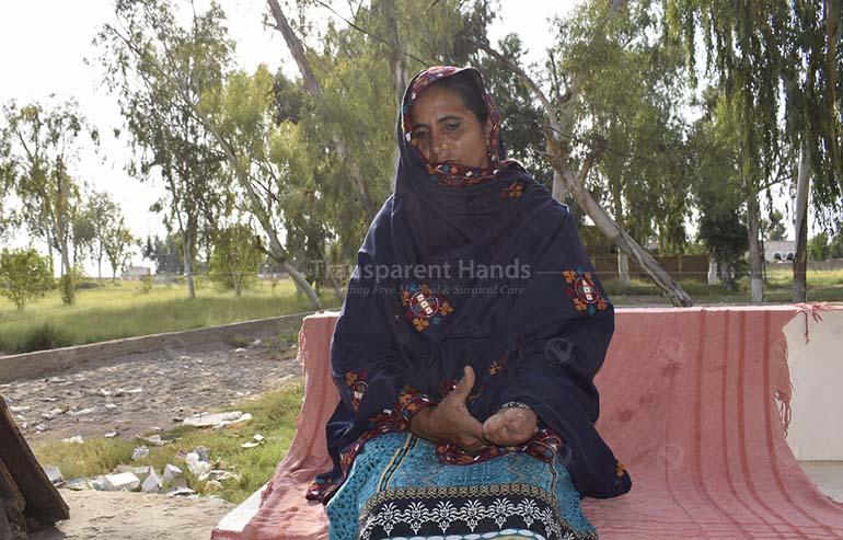 Donate for Mai Hanifan's hand rehabilitation