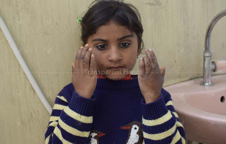 Donate to Zunaira Khalid for Her Plastic Surgery