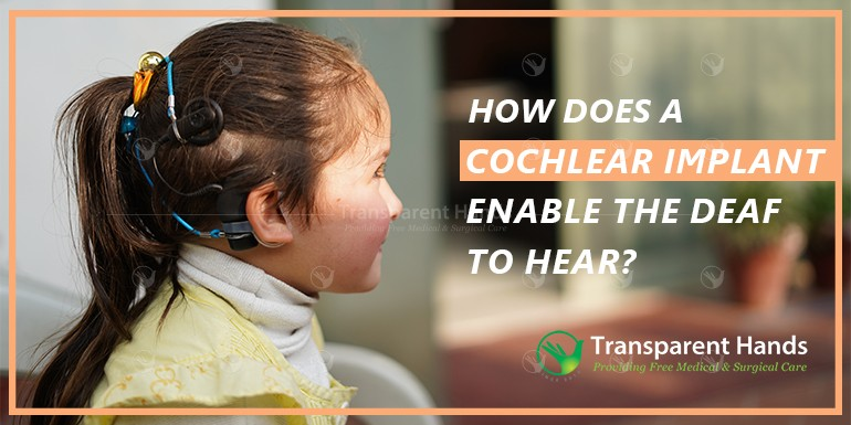 cochlear implant enable the deaf to hear