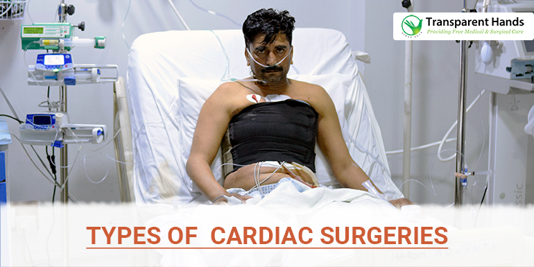Types of Cardiac Surgeries