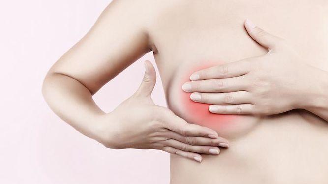 Prevenir el linfedema tras un cáncer de mama