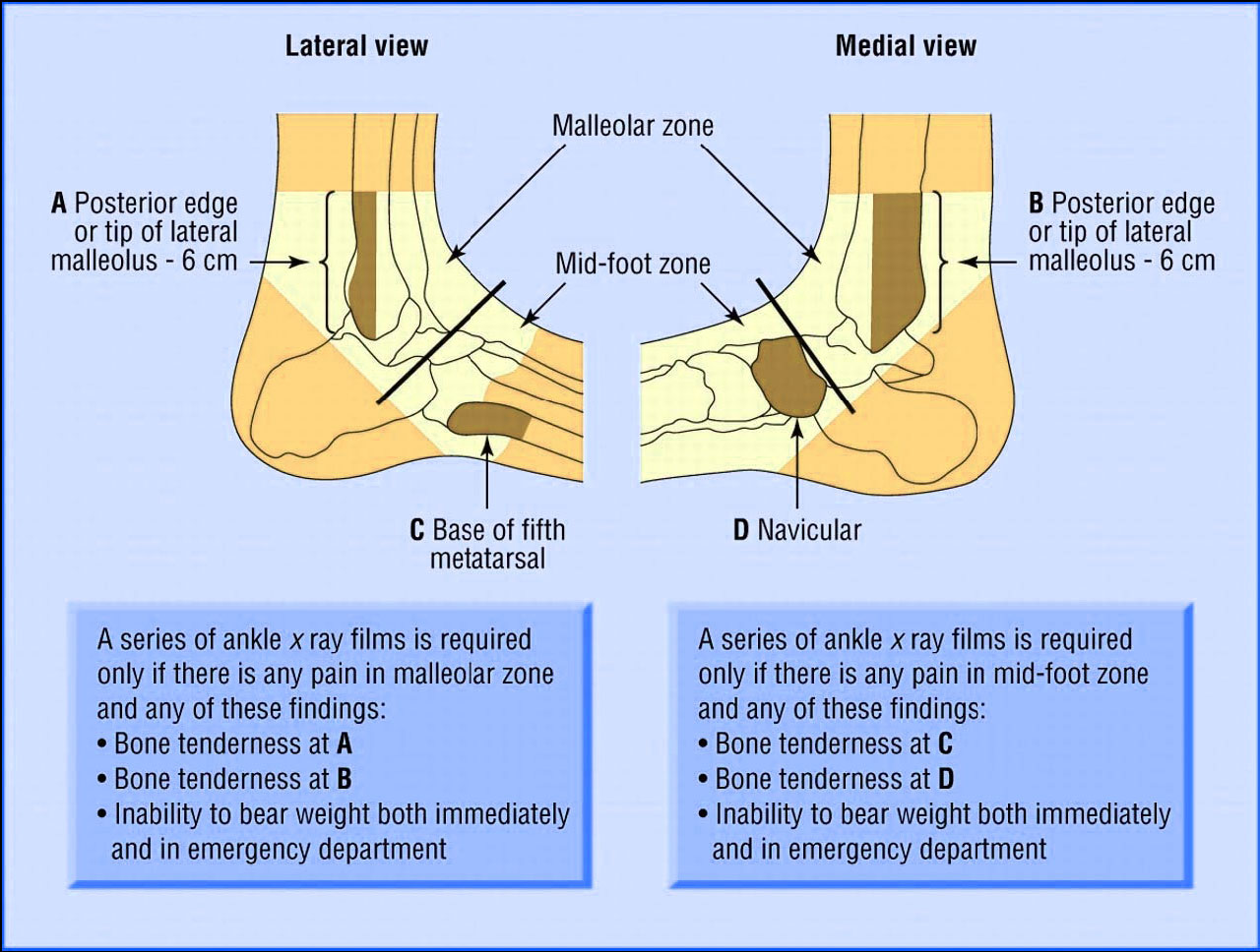top of foot pain diagram 2002 pontiac sunfire radio wiring tendons elsavadorla