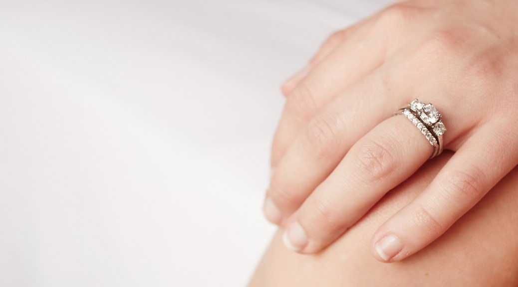 Kontaktallergie beim Ehering vermeiden  TrauringstudioBerlin