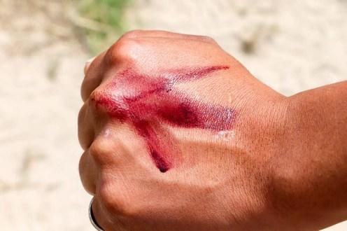 Der rote Farbstoff Karmin auf der Hand