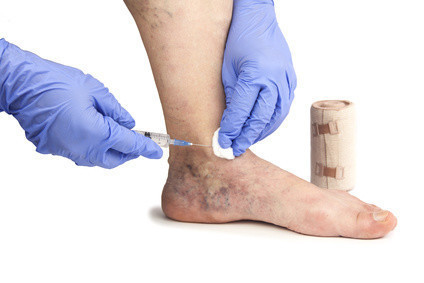 Tips for Your Sclerotherapy Treatment for Varicose Veins ...